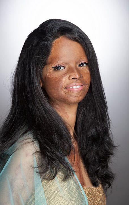 an acid attack survivor
