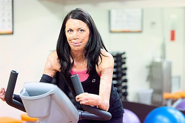 turia pitt working out after her accident