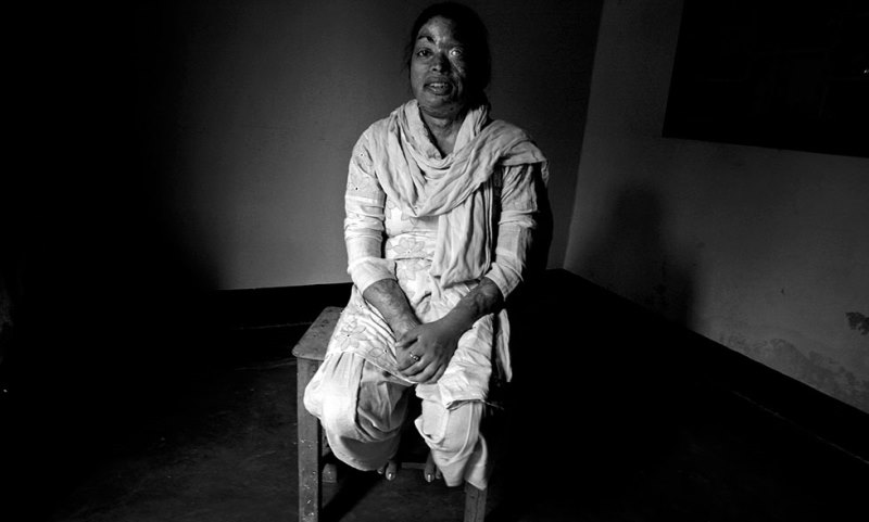 one of the acid attack survivors