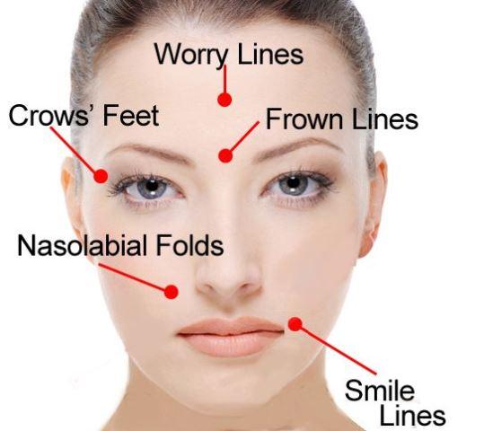 facial lines