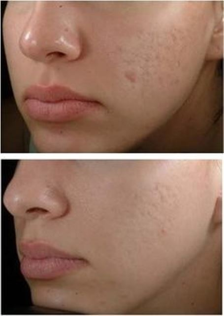 acne scars_New_Love_Times