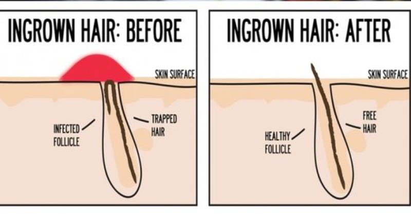 14 Effective Home Remedies For Ingrown Hair