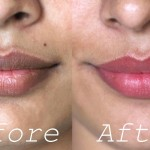 14 Invaluable Home Remedies To Lighten Dark Lips