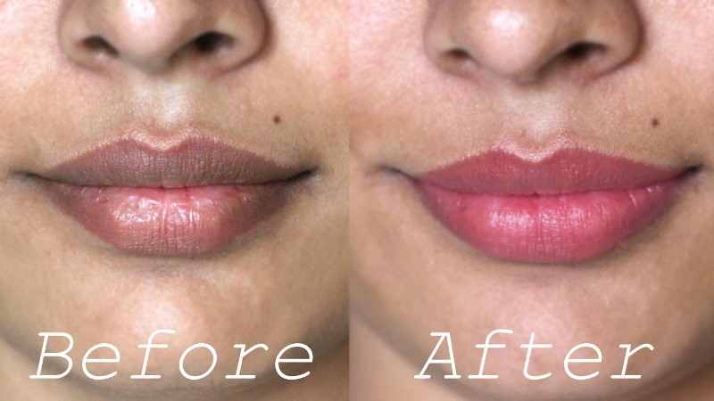 home remedies for dark lips_New_Love_Times