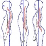 #StraightenUp: 5 Postural Deviations And How You Can Fix Them