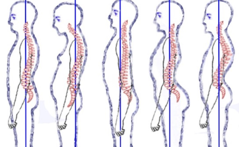 how-to-improve-your-posture_New_Love_Times