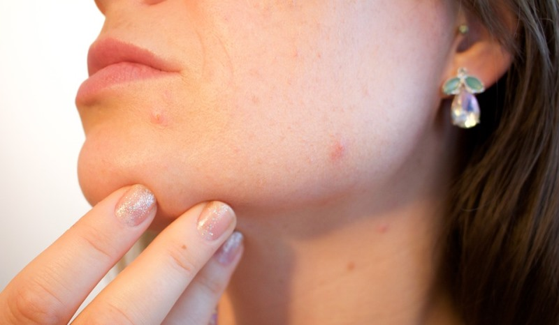 home remedies for brown spots on face_New_Love_Times
