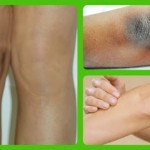 11 Superbly Effective Home Remedies For Dark Elbows And Knees