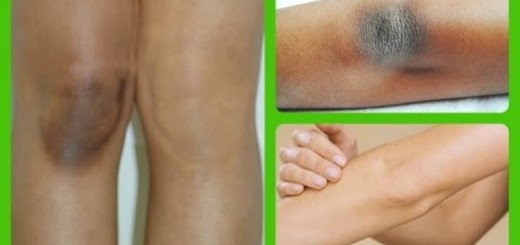 home remedies for dark elbows_New_Love_Times