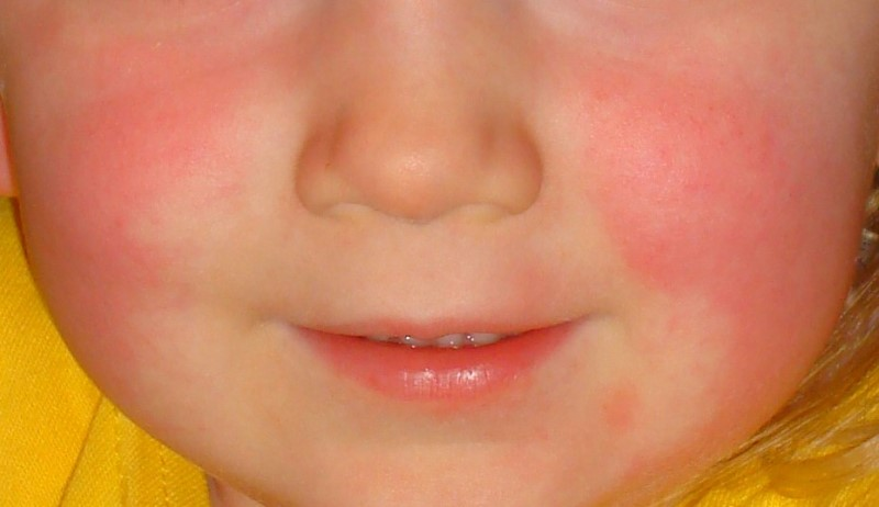home remedies for skin rashes_New_Love_Times