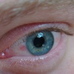 15 Super Effective Home Remedies For Bloodshot Eyes