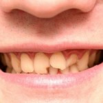 The Most Effective Home Remedies For Taking Care Of A Cracked Tooth