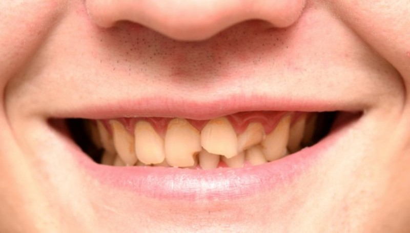 cracked tooth home remedies_New_Love_Times