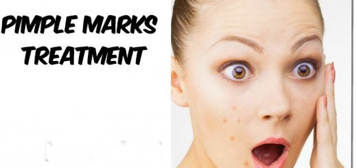 home remedies for pimple marks_New_Love_Times