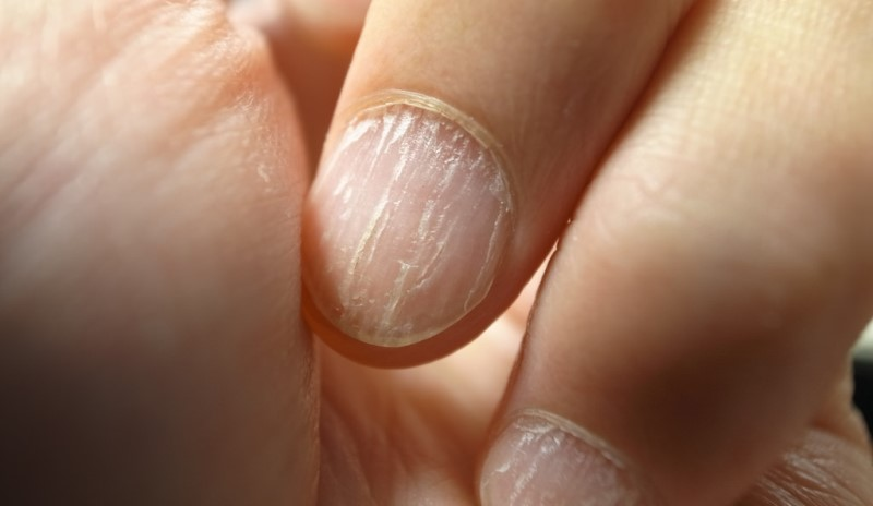 home remedies for brittle nails_New_Love_Times