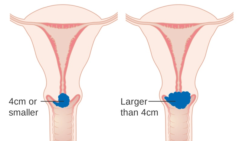 warning signs of cervical cancer_New_Love_Times