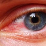 The Top 10 Home Remedies For Eye Strain