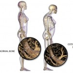 Here Are Top 10 Natural Home Remedies For Osteoporosis