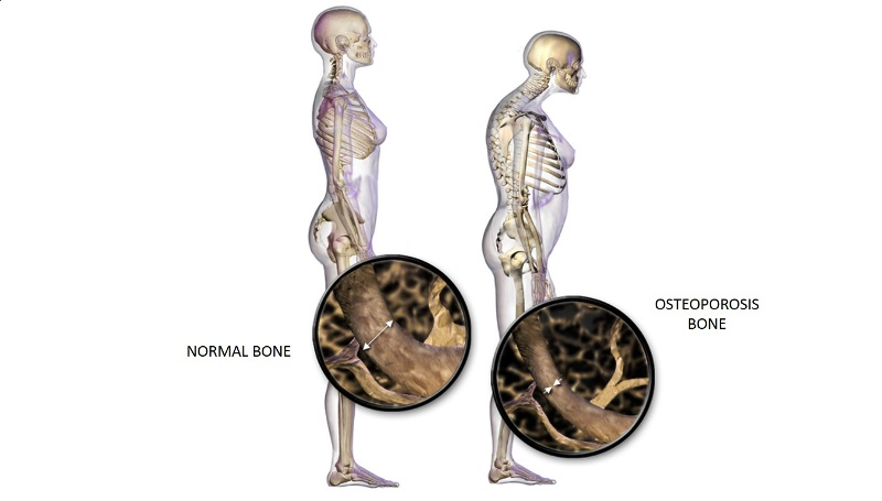 home remedies for Osteoporosis_New_Love_Remedies