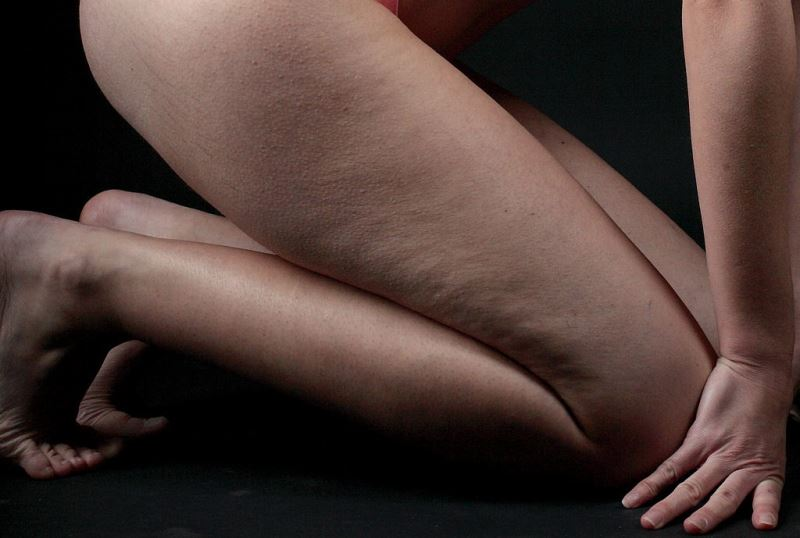home remedies for cellulite_New_Love_Times