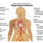 Cure Hypothyroidism Naturally With These Natural Home Remedies