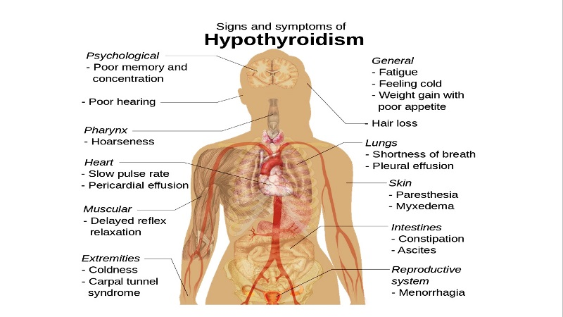 home remedies for hypothyroidism_New_Love_Times