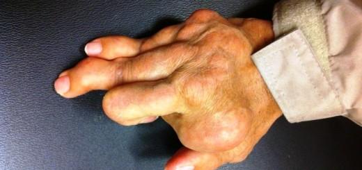home remedies for rheumatoid arthritis_New_Love_Times