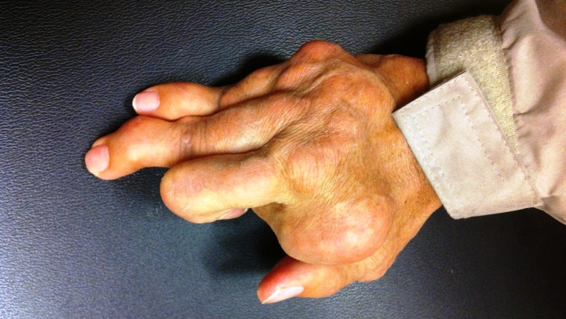 home remedies for rheumatoid arthritis_New_Love_Times