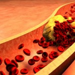 Here Are The Top Home Remedies For Clogged Arteries