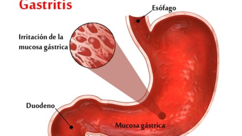 gastritis_New_Love_Times
