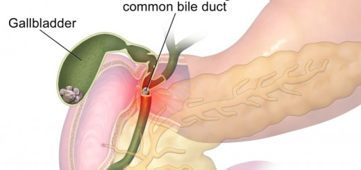 home remedies for gallstones_New_Love_Times