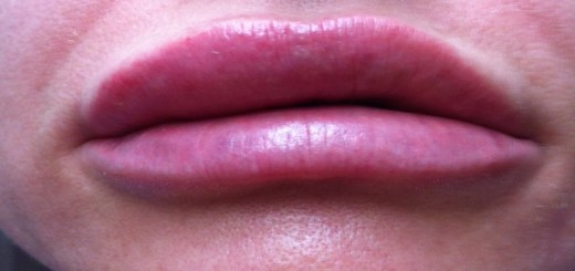 home remedies for swollen lips_New_Love_Times
