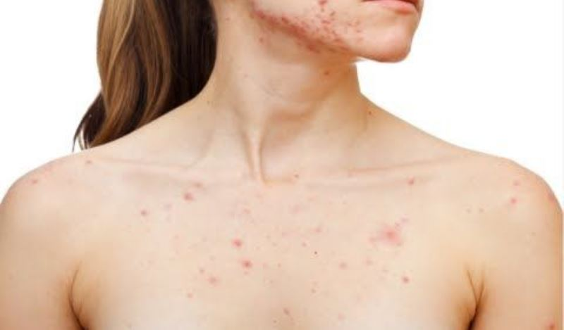home remedies for chest acne_New_Love_Times