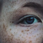 12 Excellent Home Remedies To Get Rid Of Freckles Successfully