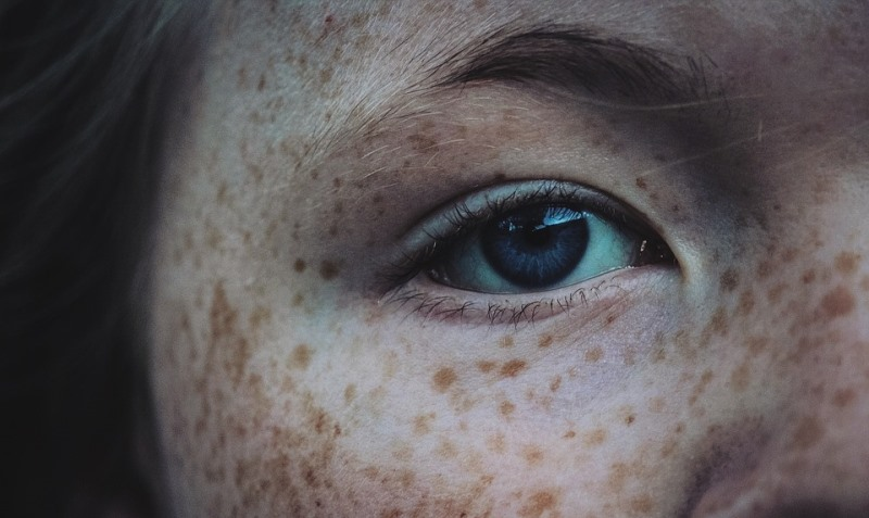 home remedies for freckles_New_Love_Times