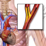 Get Instant Relief From Angina With These Effective Home Remedies