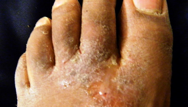 Home remedies for athlete's foot itch_New_Love_Times