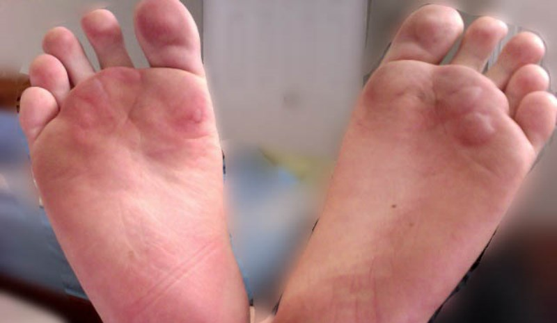 home remedies for foot blisters_New_Love_Times