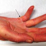 Here Are 8 Home Remedies That Will Help You Deal With Trigger Finger