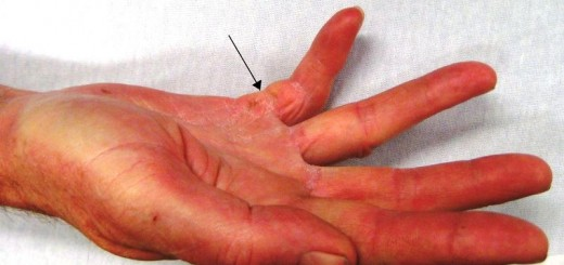 home remedies for trigger finger_New_Love_Times
