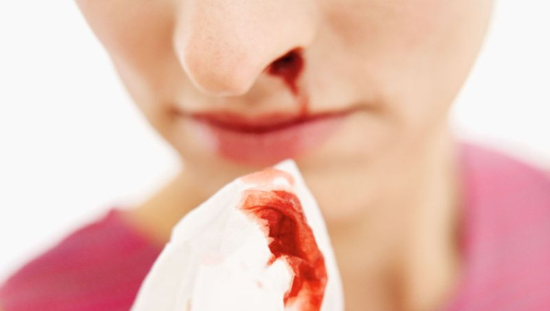 home remedies for nosebleeds_new_love_times
