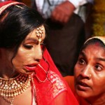 Acid Attack Victor, Lalita Bansi, Marries The Love Of Her Life, Reinstating Our Faith In Love