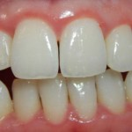 10 Amazing Home Remedies For Receding Gums That Are Super Effective