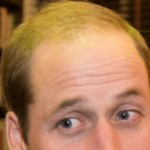 10 Natural Home Remedies For Receding Hairline Which Re-grows Hair Naturally