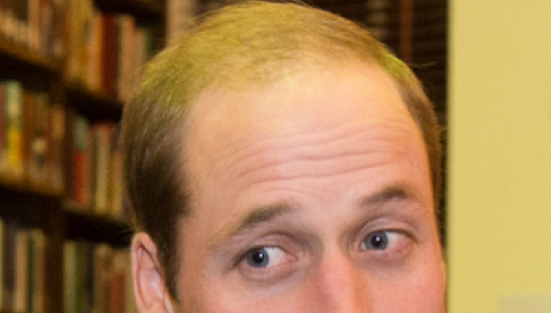 home remedies for receding hairline_new_love_times