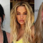 15 Cringe-Worthy Cases Of Celebrity Plastic Surgery Gone Wrong