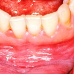 All You Need To Know About Treating Mucocele With Home Remedies