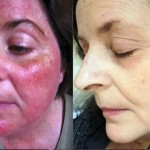 8 Home Remedies That Will Help You Treat Rosacea