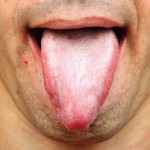 10 Amazingly Effective Natural Home Remedies For White Tongue