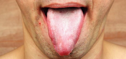 home remedies for white tongue_new_love_times